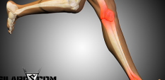 Мускулните крампи - причини, превенция и лечение